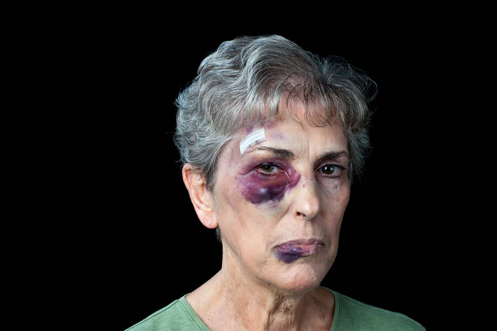 Elderly Woman Attacked